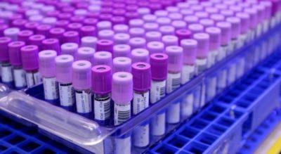 Gene Causing Blindness Found in Texas Hispanic Families