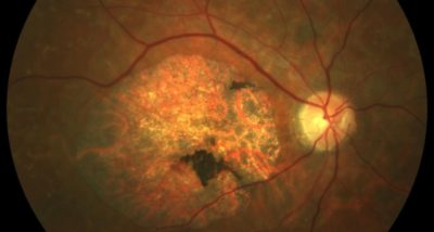 Retina Foundation Participates in International Effort to Treat Stargardt Disease