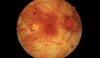 CHM color picture of the retina