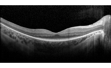OCT scan of a retina in black and white